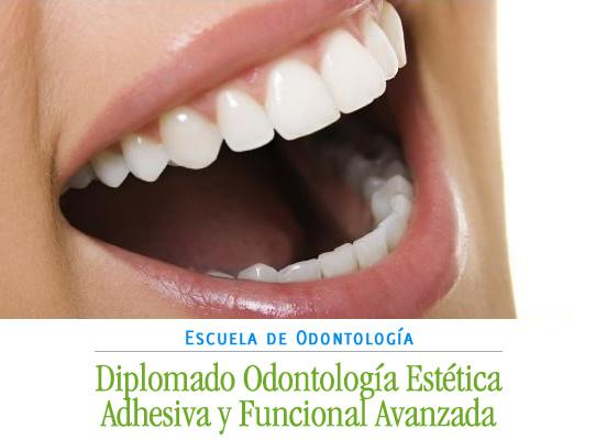 diplomado odontologia estetica adhesiva y funcional avanzada uach
